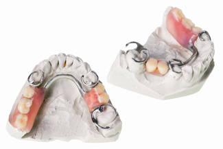 Oberkiefer erfahrungen klammerprothese Ästhetikklammern im