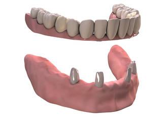 Oberkiefer ohne gaumenplatte zahnprothese Zahnprothese: Teilprothese,