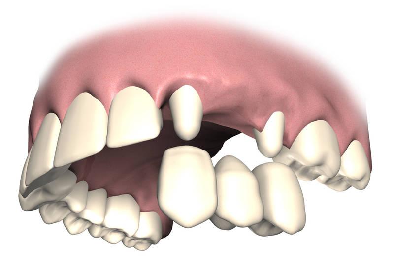 Wann ist eine Brücke besser, wann ein Zahnimplantat?