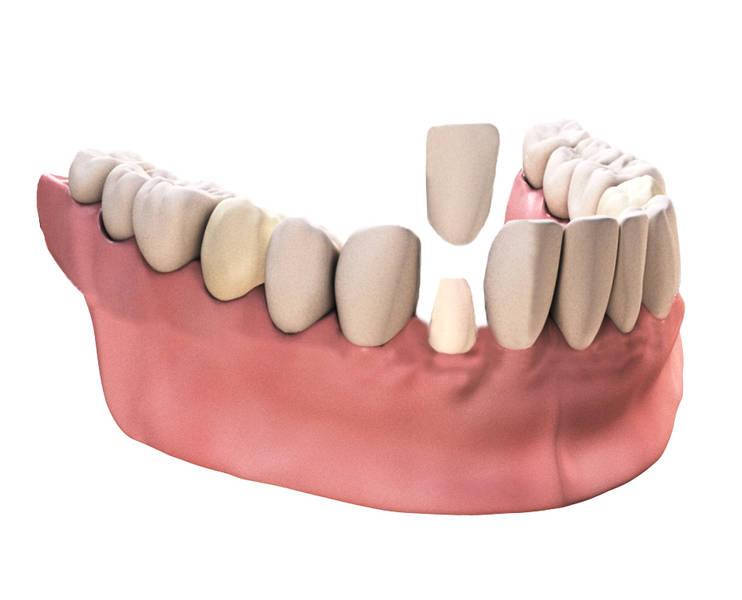überkronung der zähne