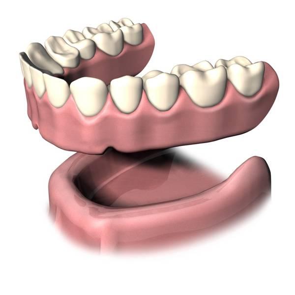 Jahren zahnprothese mit 40 Mit 40