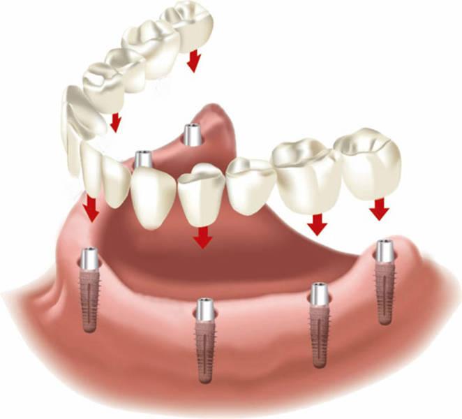 Zahnimplantat preise