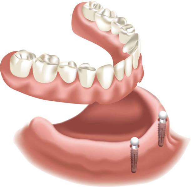 Das dürfen Zahnimplantate kosten