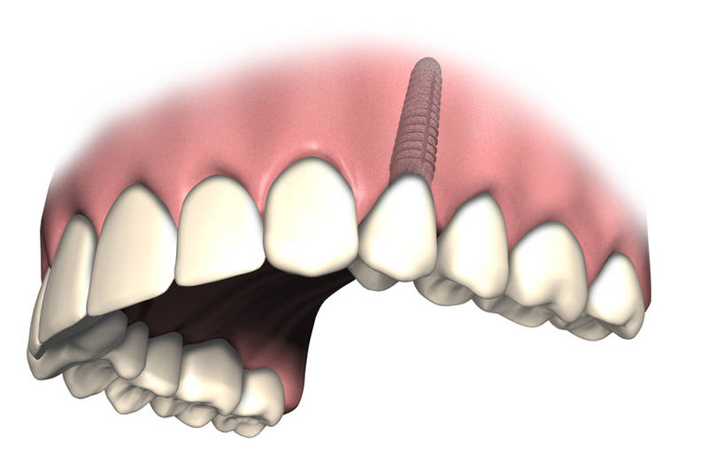 Zahn erfahrung implantat Implantatgetragene Verbundbrücke