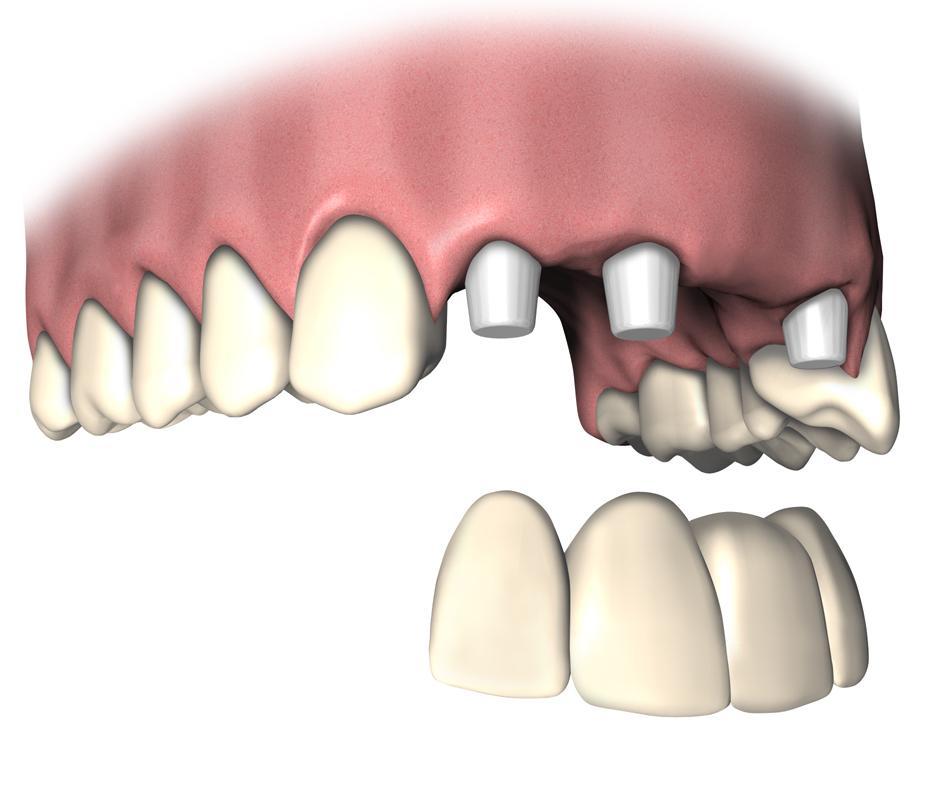 wie-viele-zahnimplantate-braucht-man?