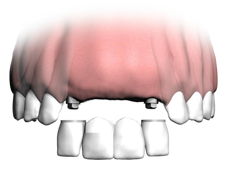 Zahnimplantate Kosten Forum