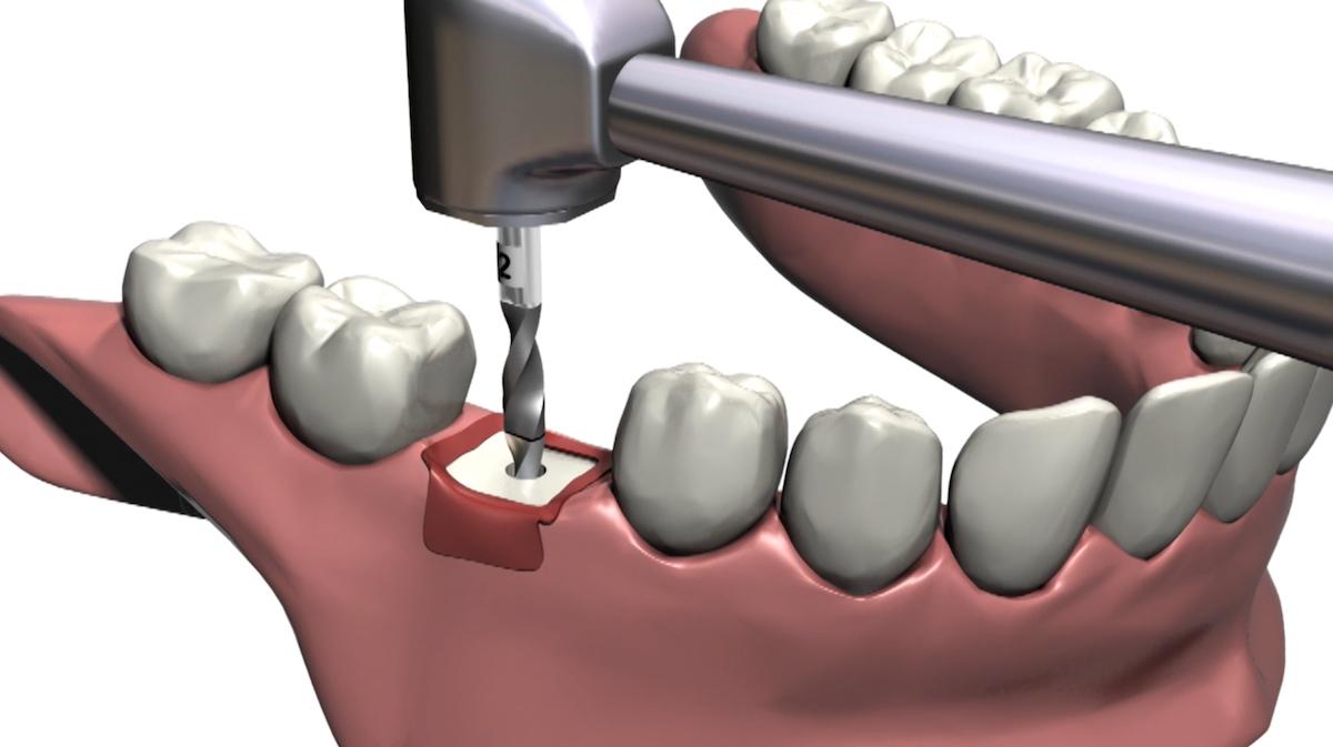 Zahnimplantat Schmerzen