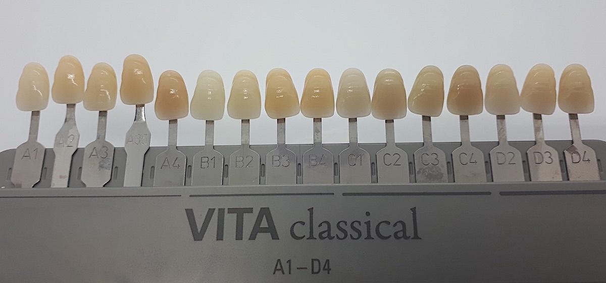 Zahnfarbe a1