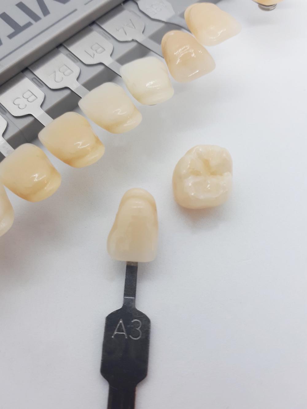 Zahnfarbe A3 Vita - Lexikon - implantate.com