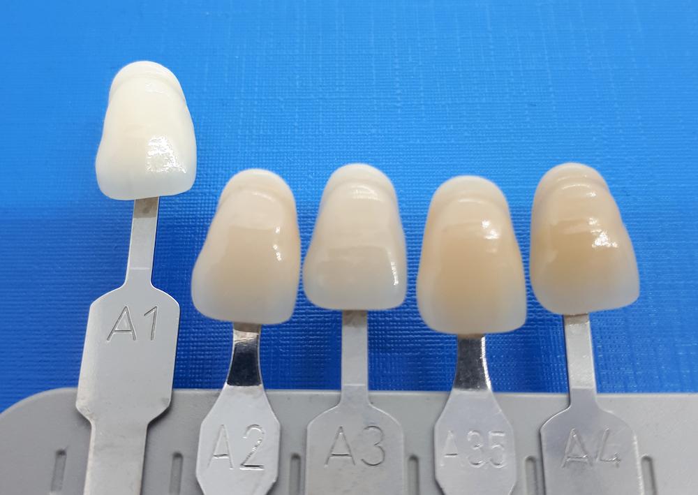 Bilder zahnfarbe a1 Endodontie
