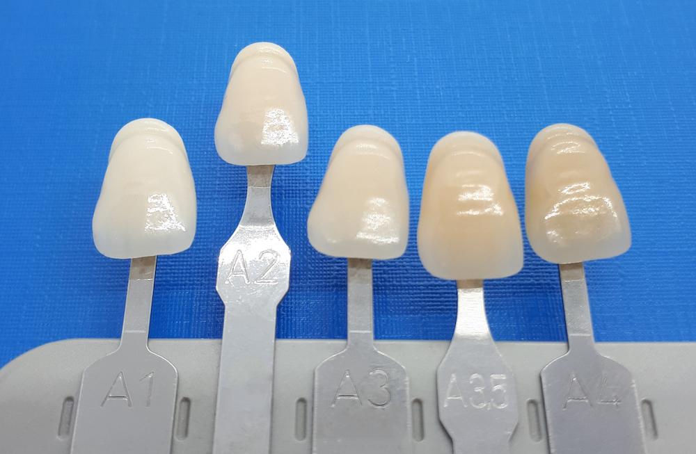 Zahnfarbe A2 Vita - Lexikon - implantate.com