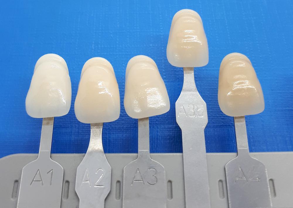 Zahnfarbe A3,5 Vita - Lexikon - implantate.com