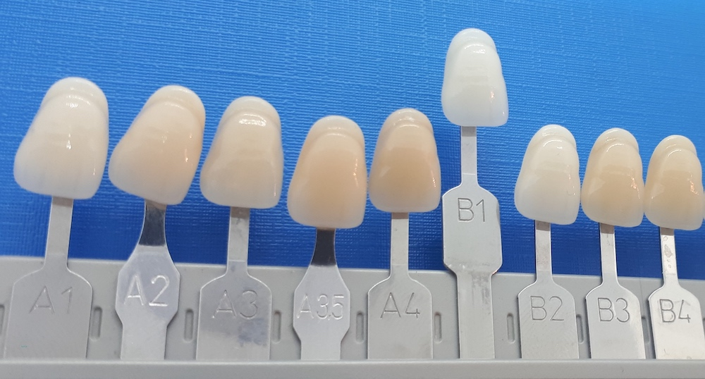 Zahnfarbe B2 Vita - Lexikon - implantate.com