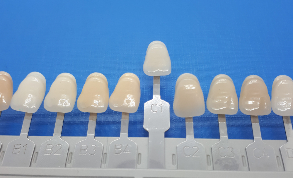 Zahnfarbe b1 bilder