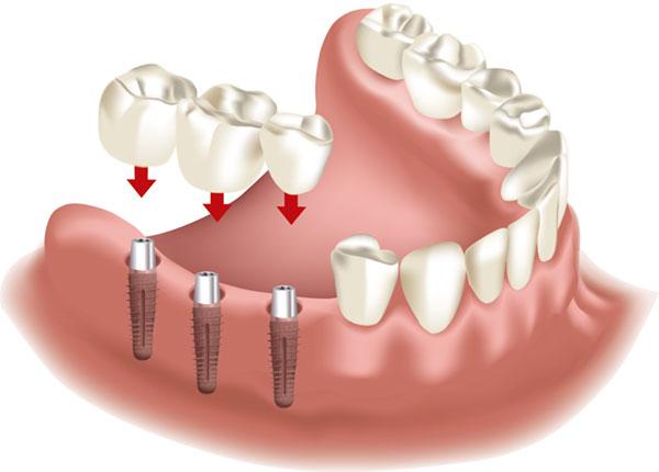 Zahnersatz implantat kosten